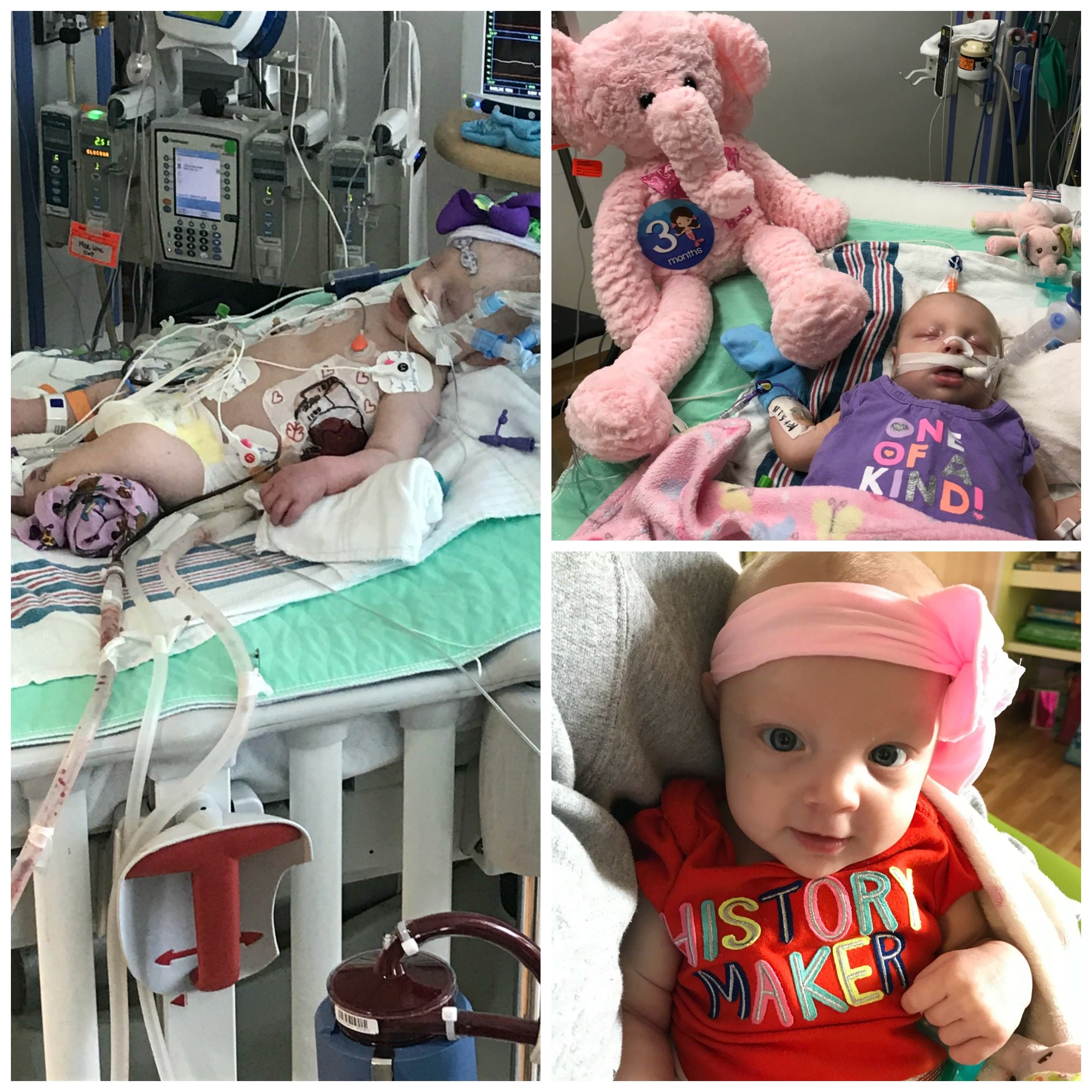 elle during and after ecmo